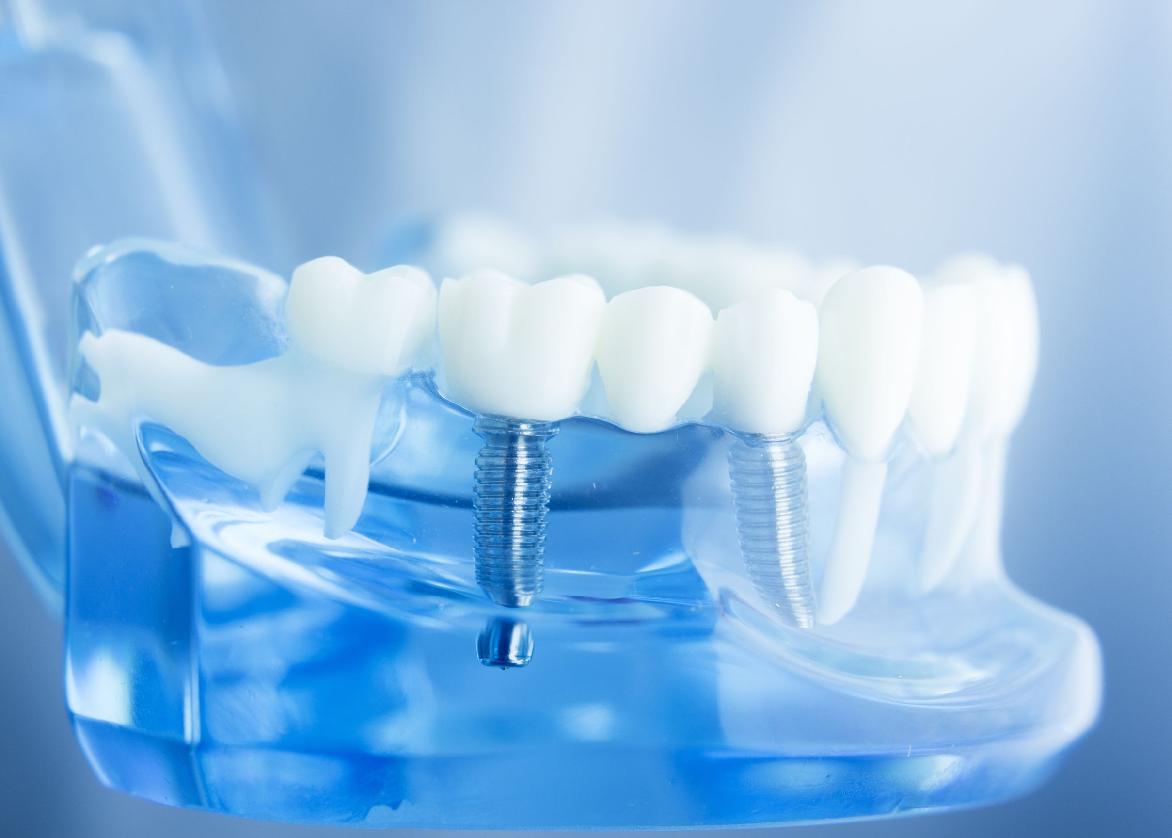 Dentist - Dental Implants