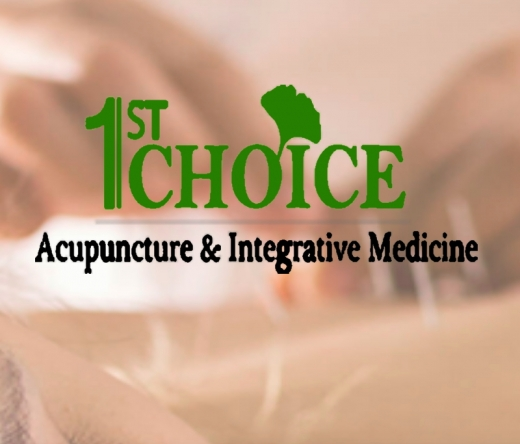 best-acupuncturists-bellevue-wa-usa
