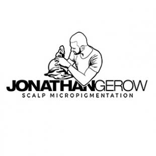 jonathan-gerow-scalp-micropigmentation