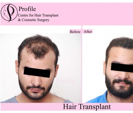 profilecosmeticsurgerycentre